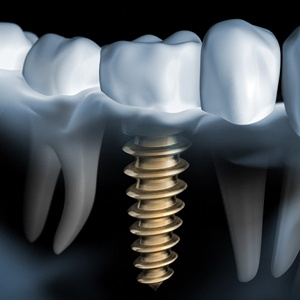 Digital model of dental implants for tooth loss.