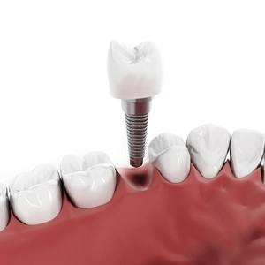 Model of a single tooth dental implant.