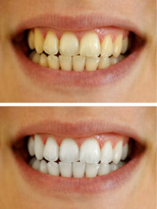 Teeth whitening options from your dentist in Evansville are affordable, convenient, and produce impressive results.